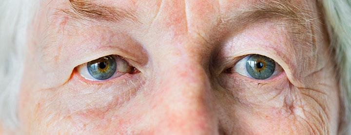 Tratamiento de la Degeneración Macular Asociada a la Edad (DMAE)