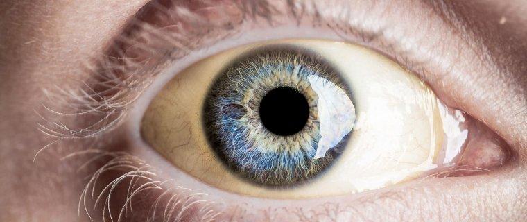 Causas de los ojos amarillentos o ictericia