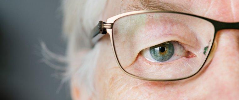 Cirugía refractiva con lentes multifocales