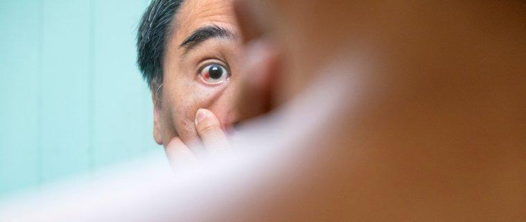 Uveítis: Causas, Síntomas y Tratamiento