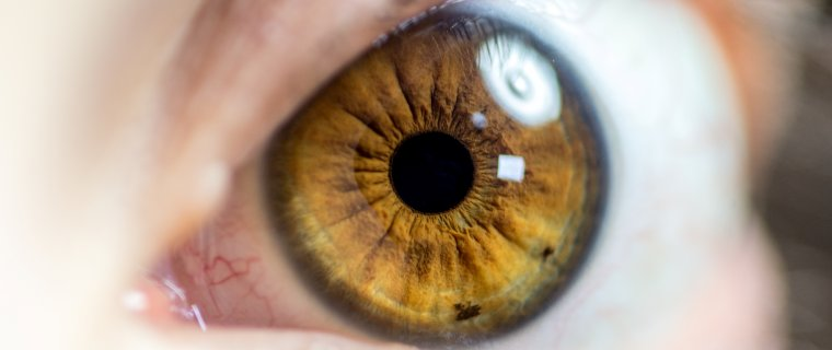 ¿Qué es un edema macular? Síntomas y tratamiento