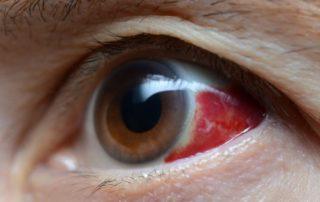 El derrame ocular o hiposfagma: qué es y cómo afecta al ojo